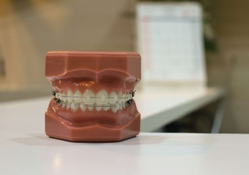 マコなり社長おすすめの体への投資 第2位|歯科矯正